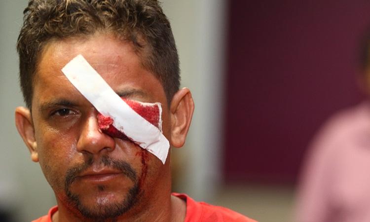 24/05/2017. Credito: Luis Nova/Esp.CB/D.A. Press. Brasil. Brasilia - DF. Clementino Nascimento Neto, na ala de emergencia apos o protesto Ocupa Brasilia, no Hospital da Asa Norte - HRAN